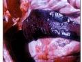 Hemoragični infarkti po slezeni