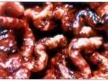 Krvarenja po sluznici želuca