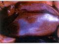 Krvarenje u bubrezima