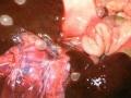 Mjehurići(cisticerki) T. pisiformis na jetri zeca