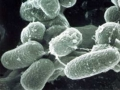 2. Mycobacterium avium subsp. paratuberculosis