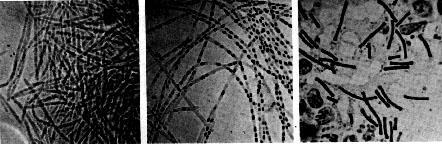 Originalne mikrofotografije B. anthracisa koje je snimio Robert Koch