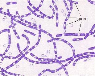 Obojen preparat bakterije B. anthracis sa sporama1